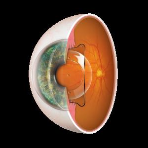 EVO Visian ICL, Sitz im Auge, transparenter Hintergrund