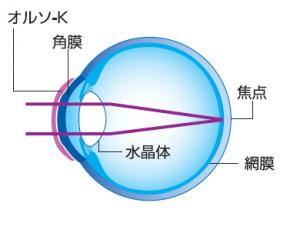 オルソメカニズム② (2)